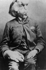 Joseph Merrick birthday
